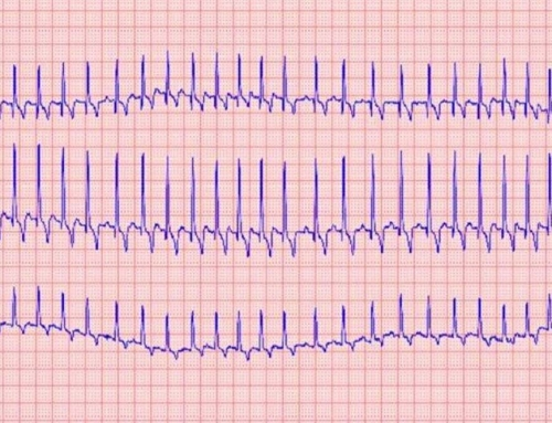 Electrocardiogramme Conventionnel